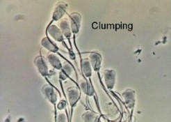 Is sperm suspose to be clumpy